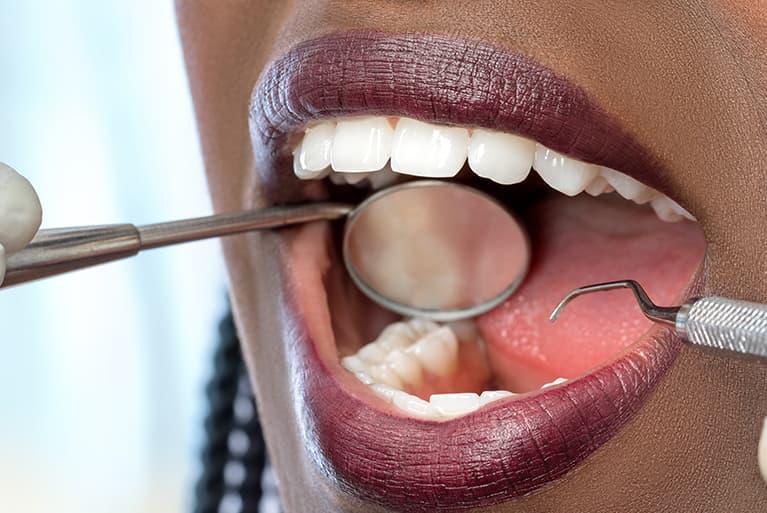 Offener Mund beim Zahnarzt