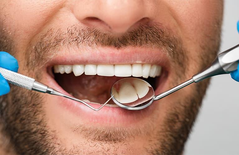 Keine Macht dem Zahnstein – was dagegen hilft!