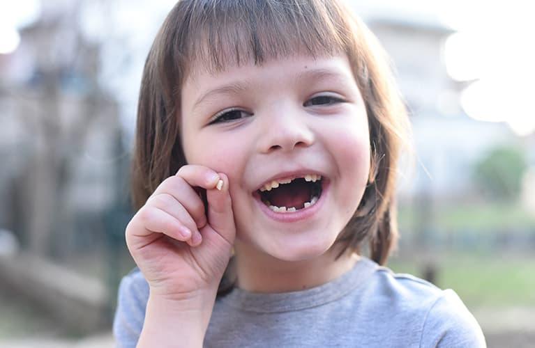 Mädchen und Junge zeigen beim Lachen ihre Milchzähne.