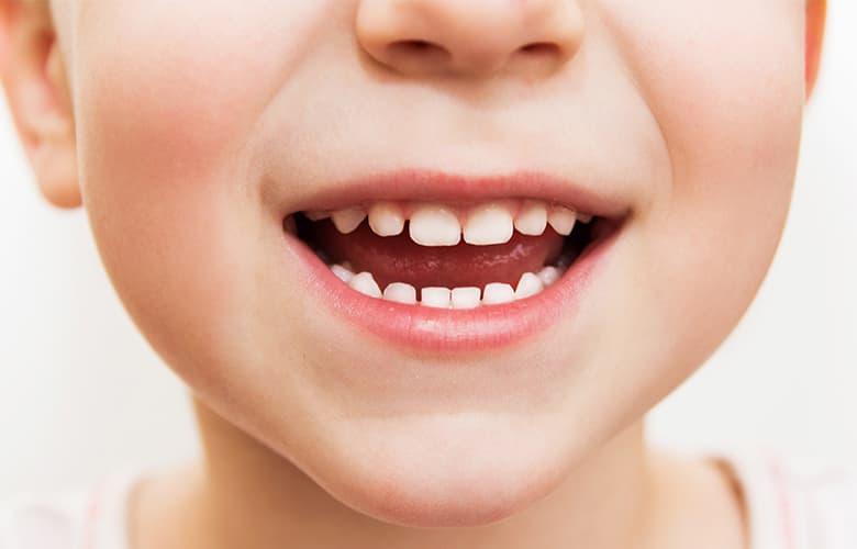 Τρεις λόγοι για να επιλέξεις μια ηλεκτρική οδοντόβουρτσα για το παιδί